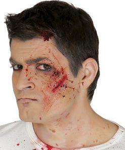 Cicatriz cara